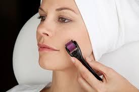Phương pháp trị sẹo rỗ bằng công nghệ Thermage RF